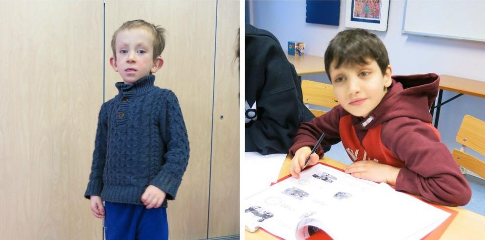 To barn med Kabuki syndrom